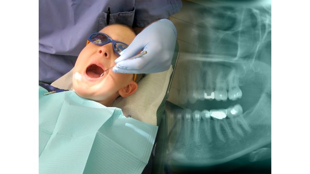 Kool Smiles Dental Offering Free Care for Children