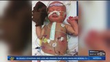 Give a Kid a Miracle: Open Heart Surgery Saves Newborn