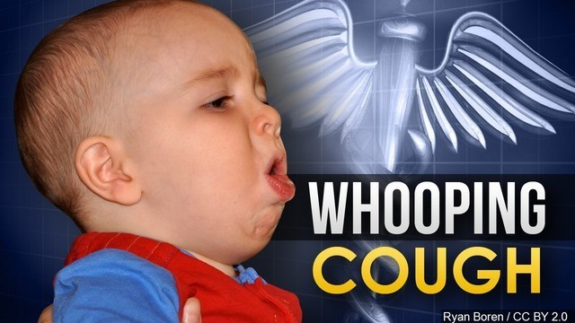 Second Fayetteville junior high school student diagnosed with whooping cough